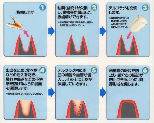 http://www.s-shika-clinic.com/asset/E78CAB20-20E382B3E38394E383BC-d45c4.jpg