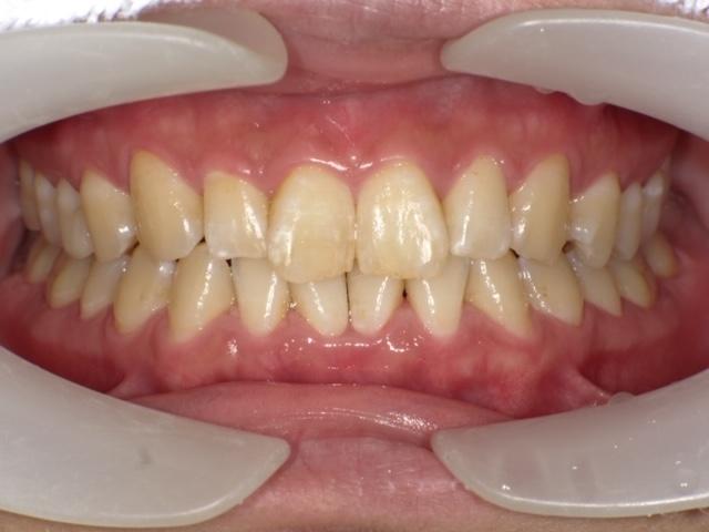 歯周治療2