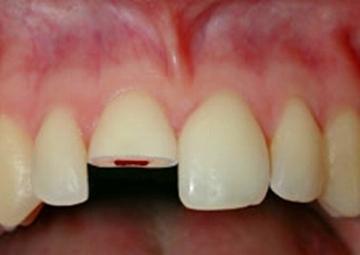 前歯が出ているので、ぶつけ易い。歯が折れてしまう事も・・・