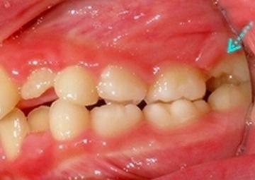 6歳臼歯が前の乳歯にひっかかって、うまく生えてこられない。