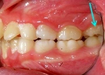 矯正治療後、歯がまっすぐ生えました。歯も抜かずにすみました。