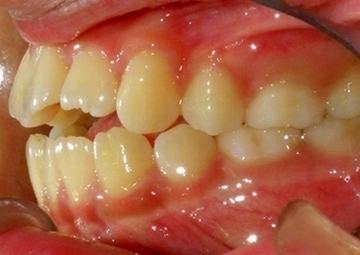 指しゃぶりによる歯並び