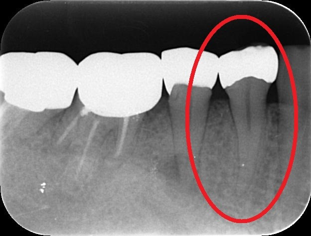 http://www.s-shika-clinic.com/asset/enndeo11.jpg