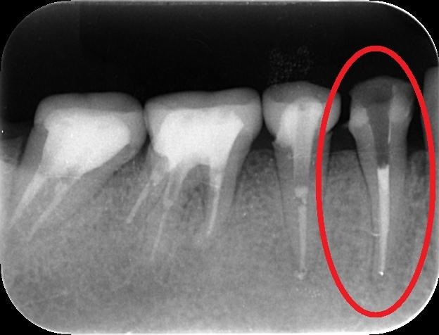 http://www.s-shika-clinic.com/asset/enndo12.jpg