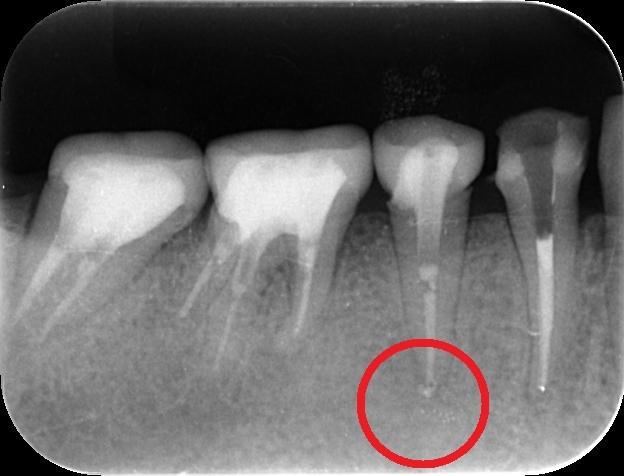 http://www.s-shika-clinic.com/asset/enndo15.jpg