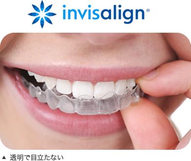 https://www.s-shika-clinic.com/asset/img001134.jpg