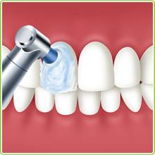 http://www.s-shika-clinic.com/asset/img_105_1.jpg