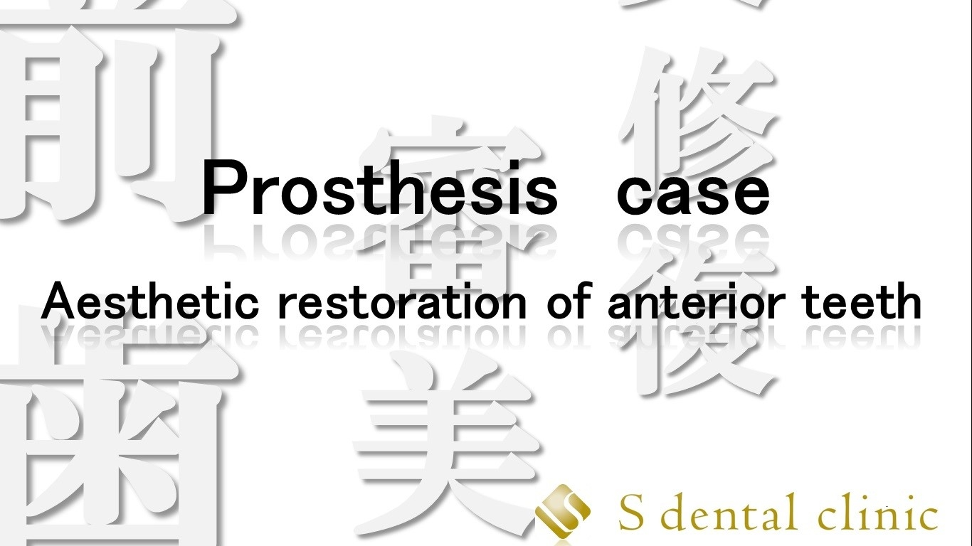 http://www.s-shika-clinic.com/asset/sdfhdfhsh1.jpg
